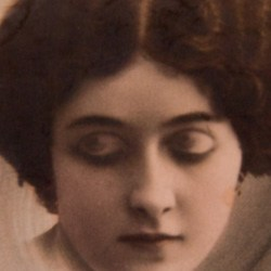 eyelids